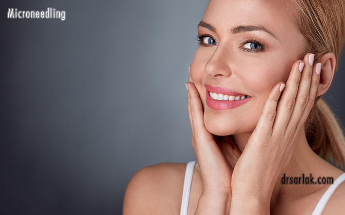Targeted areas for microneedling