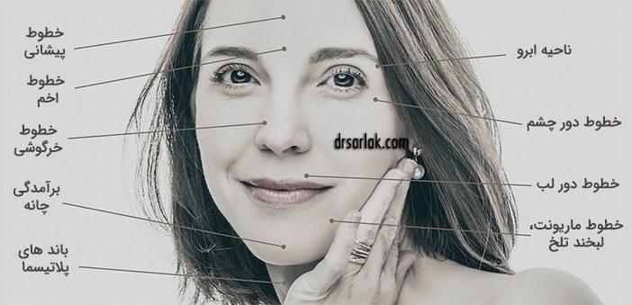 botox facial areas