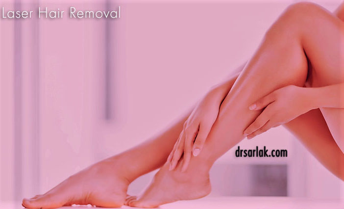 everything about laser hair removal