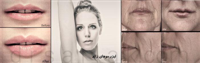 فیلم و تصاویر قبل و بعد عمل های زیبایی